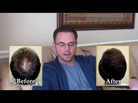 Hair Transplan Truth