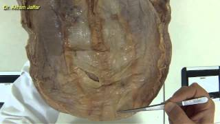 Peritoneal Folds Of Anterior Abdominal Wall