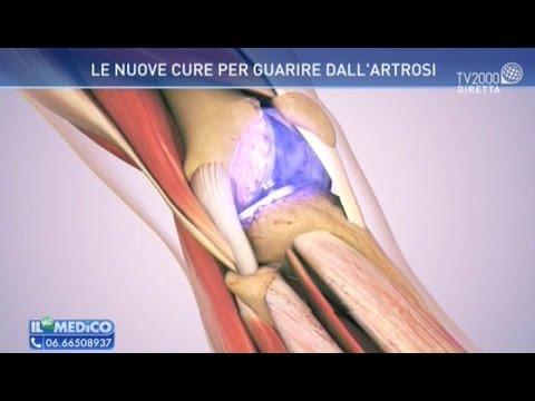 Il mio medico - Le nuove cure per guarire dall'artrosi