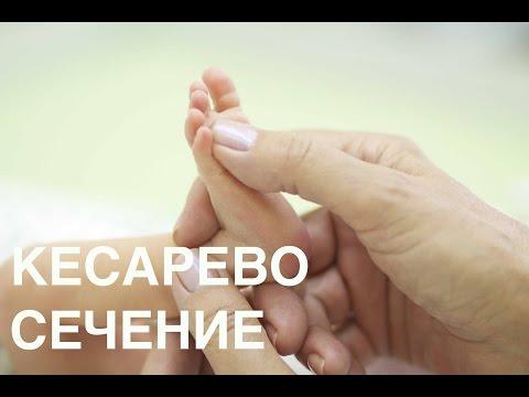 Роды через кесарево сечение