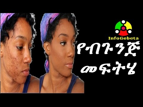 Ethiopia best way to treat pimples problem