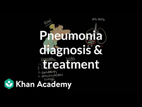 how to cure pneumonia