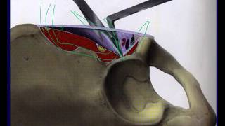 Acetabulum fracture surgical approaches - Ilioinguinal (OTA lecture series III v05b)