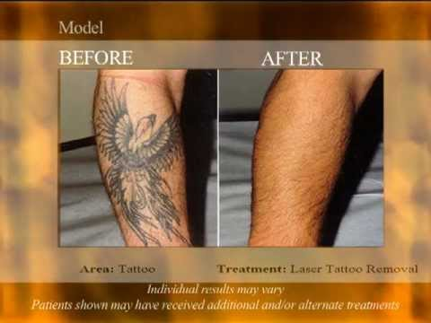 100 salabrasion tattoo removal tattoo collections for How much is picosure tattoo removal