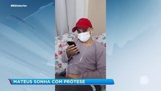 Sorocaba: garoto sonha em ganhar uma prótese