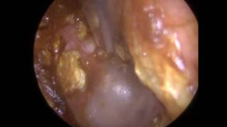 230 - Blocked Ear Wax Removal using Endoscopic Ear Microsuction with Fine EndThe client attended for blocked ear wax removal at my clinic in Leicester, England, UK.The ear canal narrowed as it got deeper and it was difficult to access the attic of the eardrum in the anterior-superior quadrant as a result using a standard 2mm Zoellner suction probe.I therefore attached a Fine End Gauge 18 to the end of the suction probe to enabled access and safe removal of the ear wax stuck in this region of the eardrum