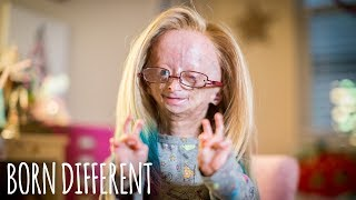 Video Adalia Rose: The Girl Who Ages Too Fast | BORN DIFFERENT MP3, 3GP, MP4, WEBM, AVI, FLV Desember 2018