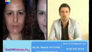 Op Dr Mustafa Ali Yanık 35 40 Dk da iplerle yapılan gençleştirme işlemi anlatıyor