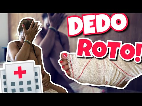 ACCIDENTEME ROMPO EL DEDO!!Vlogs diarios