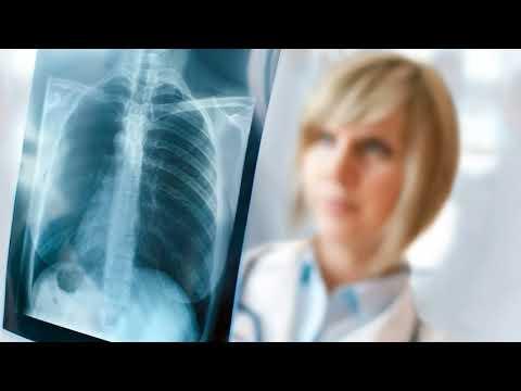 Как часто можно делать рентген легких взрослому, ребенку?