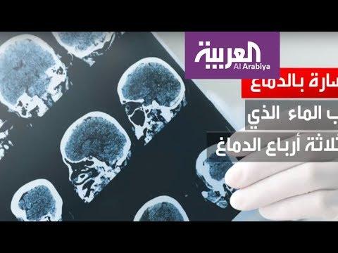 العرب اليوم - تضرر خلايا المخ بسبب التوتر العاطفي