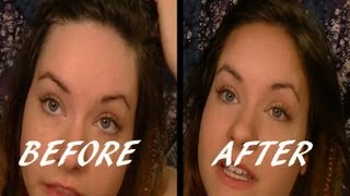 Video Shrink Your Forehead in Seconds! | Beauty Tip MP3, 3GP, MP4, WEBM, AVI, FLV September 2018