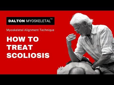 How To Treat Scoliosis | Erik Dalton