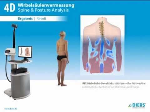 - Spondylos Laser Spine Lab