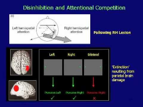 Transcranial Magnetic Stimulation and the Rehabilitation of Spatial Cognition