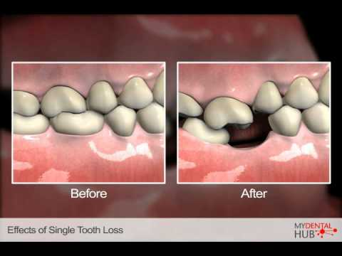 Effects Of Tooth Loss Can Be Prevented Through Dental Implants