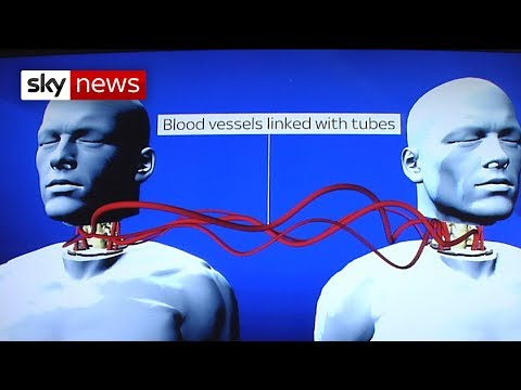 Matthew Crocker, a consultant neurosurgeon at St George's Hospital, London, tells Sky News what's involved in a planned head transplant. Watch the video.