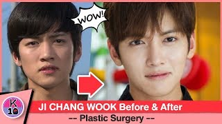 Download Video 💬 Ji Chang Wook Before and After Plastic Surgery [NETIZEN BUZZ] MP3 3GP MP4