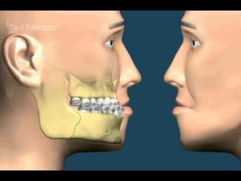 Хирургическое устранение задвинутого подбородка. Хирургия и ортодонтия