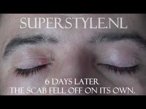 Benign Eyelid Lesion Removal Super Style