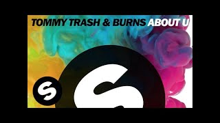 Thumbnail for Tommy Trash vs. Burns — About U