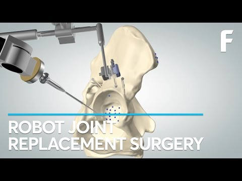 TSolution One, Robotersystem, orthopädische Chirurgie, think surgical