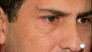 Alessander Leal, ex-marido de Sânia Tereza, foi preso e condenado pelo assassinato do vereador alagoano, Luiz Ferreira. Durante entrevista, ele afirma que foi acusado do crime por interesses de outro grupo político.