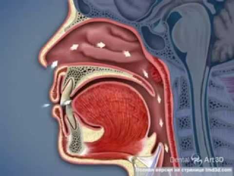 Щелканье в челюсти - причины и последствия