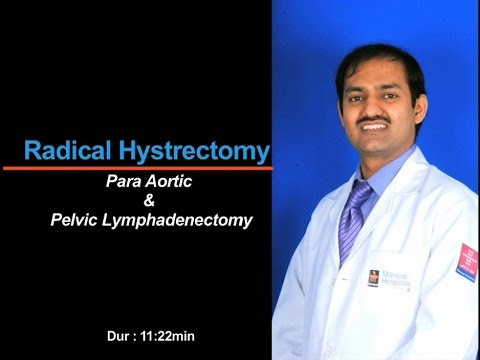 Radical Hysterectomy