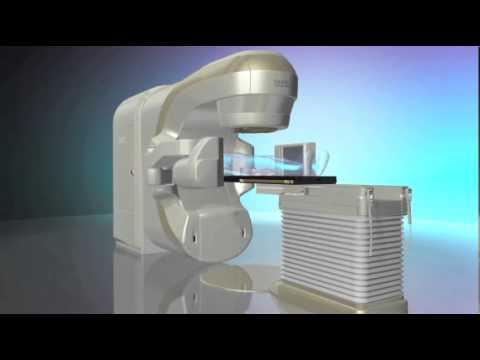 IGRT Animation Video