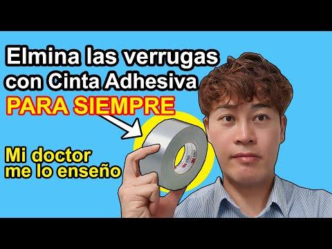 Videos caseros - Elimina las VERRUGAS PARA SIEMPRE RÁPIDO en tu CASA   4 Remedios Caseros