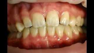 Incognito - Die Unsichtbare Zahnspange