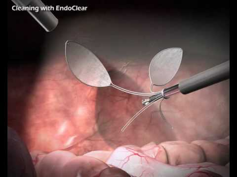 EndoClear™ - Internal Scope Cleaner