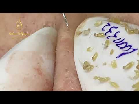 Blackheads Removal great to watch (332a)   Loan Nguyen