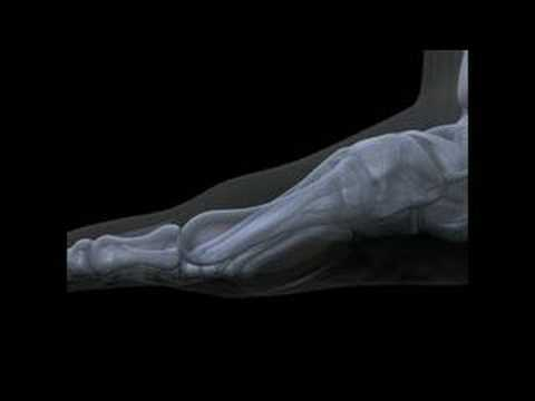 An Animated Explanation of Hallux Limitus and Hallux Rigidus