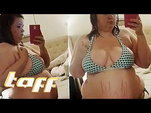 Abnehmen EXTREM: 68 Kilo abgenommen   taff   ProSieben