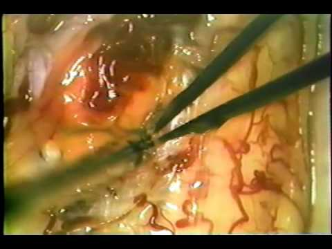 Cervical hemangioblastoma