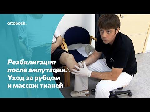 Профилактика рубцов после ампутации