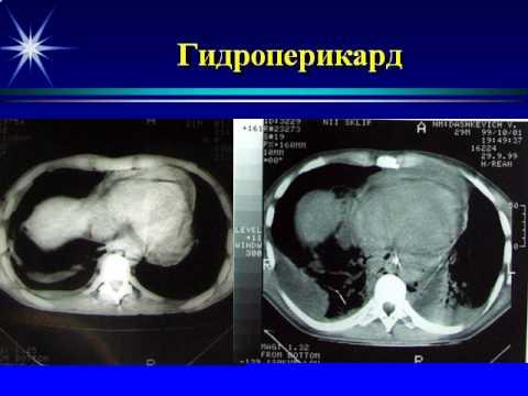 Бармина Т  Г    роль КТ в диагностике и лечении острого медиастинита