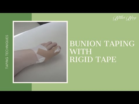 Videos Bunion