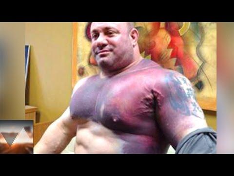 7 bodybuilders a cui sono letteralmente esplosi i muscoli