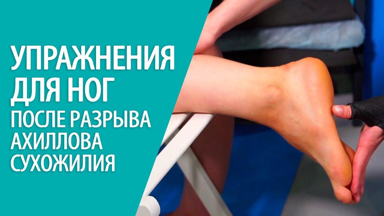 Упражнения для ног во время реабилитации после разрыва ахиллова сухожилия - хирургия стопы Алексея Олейника