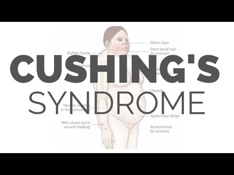 What Is Cushing Syndrome - Pathology, Symptoms, Causes, Diagnosis, Treatment