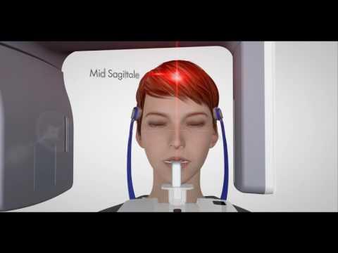 VistaPano S Guidance Video