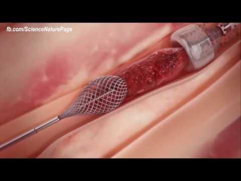 Вот так скоро будет выглядеть операция по предотвращению инфаркта и инсульта
