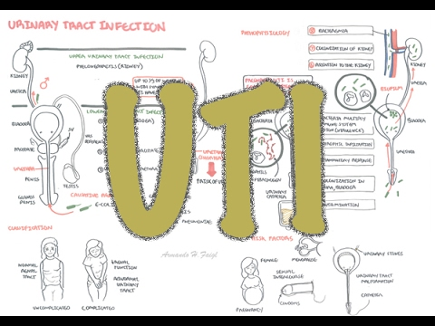 Urinary Tract Infection - Overview