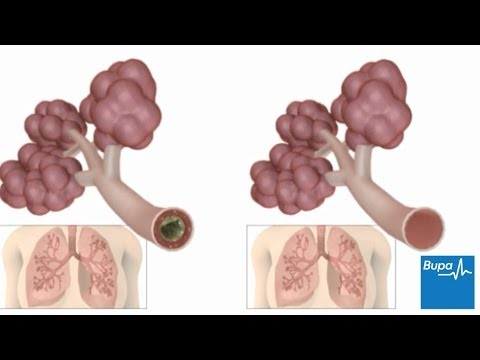 how to control lungs infection
