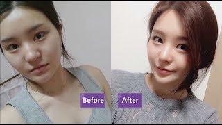 JW Plastic Surgery, the best Korean plastic surgery clinic in Seoul