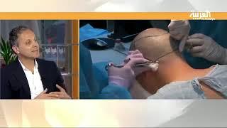 Hair Transplant - Al Arabiya