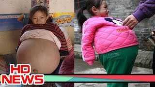 4 year old girl 9 months pregnant with brother's twins. Four year old Hu Yunxing from Shanxi province in China is 9 months pregnant with brother's twins. It'...